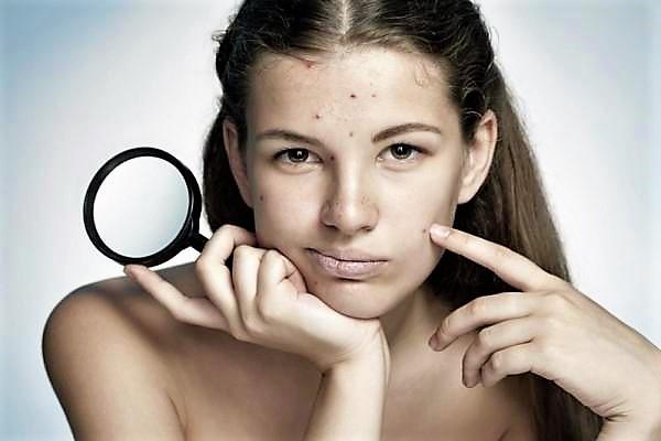 Acnee – remedii naturale cu Uleiuri Esentiale